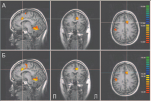 Схема 2: волюметрический анализ паттерна нейронной активности при обучении управлению болью.